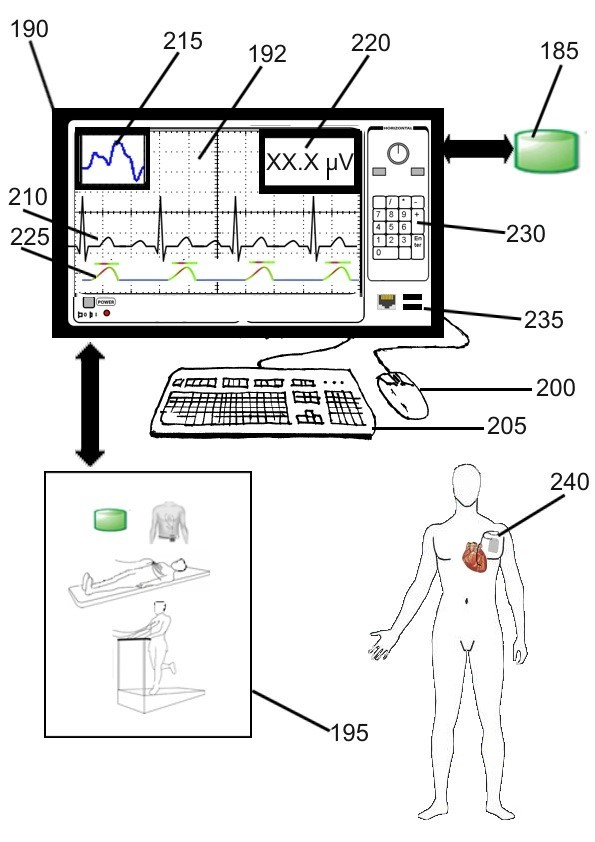Device and method for ventricular repolarization alternans detection by windowing.