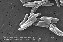 New method to test tuberculosis virulence