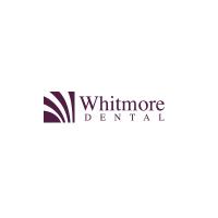 Whitmore Dental - Best Dental Implants & Dentures
