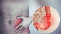 Diagnostic kit for inflammatory bowel diseases